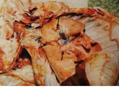 早期感染导致的肺小叶炎症.png